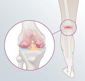 Osteoartritida kolene